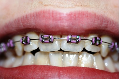 Orthodontic braces may result in immunotolerance to nickel ACD.*